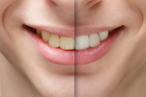 teeth whitening in redwood city
