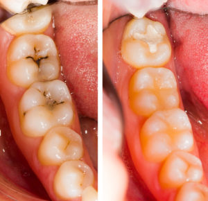 tooth colored fillings in redwood city