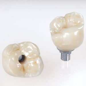 implant crowns in redwood city
