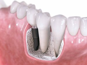 dental implants in redwood city